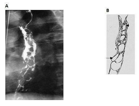 Barium swallow esophageal varices