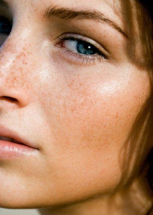 Freckles are sexy: Natural Skin, Natural Makeup, Au Natural, Summer Skin, Faces, Natural Beautiful, Beautiful Skin, Freckles, Summer Glow