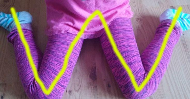 ΥΓΕΙΑ ΚΑΙ ΕΥΕΞΙΑ  ΓΙΑ ΚΑΛΥΤΕΡΗ ΦΥΣΙΚΗ ΚΑΤΑΣΤΑΣΗ.: Γιατί τα παιδιά δεν πρέπει να κάθονται σε θέση «W»...