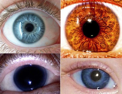 Rare Human Eye Colors, aqua, amber, black, hazel. Green is the most common of the rare colors at 2 percent of the population.  From Socialphy