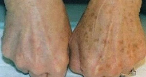 La industria cosmética tiembla luego del descubrimiento de esta mezcla casera, que elimina las pecas y manchas de la piel con unos resultados increíbles… [RECUERDA COMPARTIR]