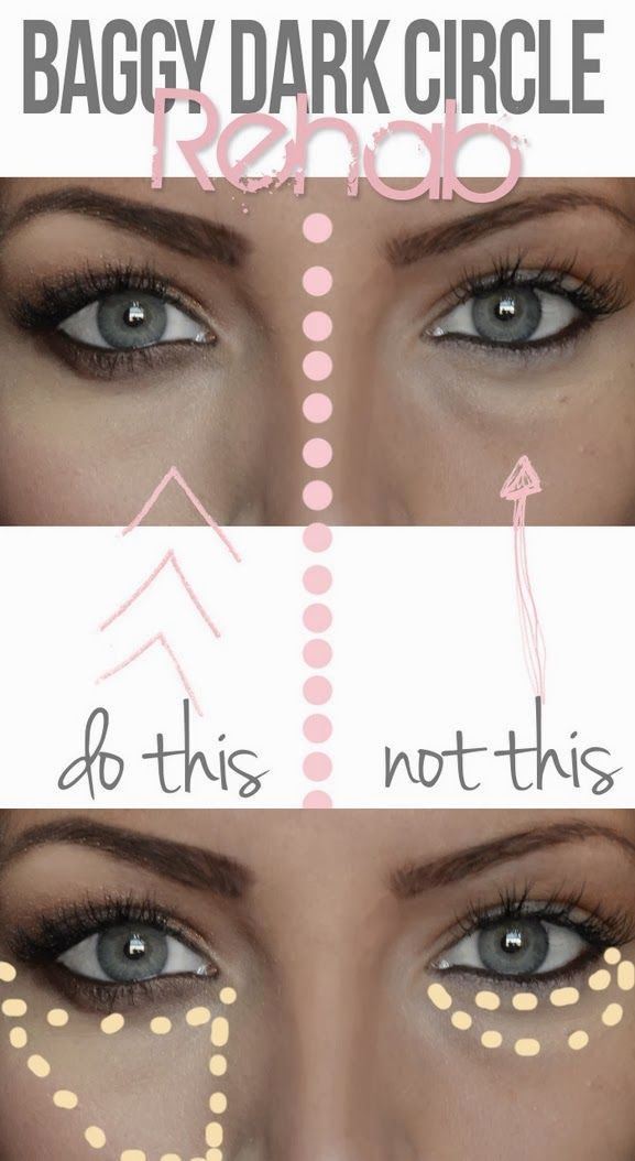Hide Dark Undereye Circles: Apply the concealer in a pie piece under your eye instead. This way you cover the darkness and create a little arrow directing the attention right to your eyes and evening out your cheek in the meantime. Total life saver. Try it with a yellow based concealer. Also smudge a little charcoal liner under the eye to draw attention back to the lashline.