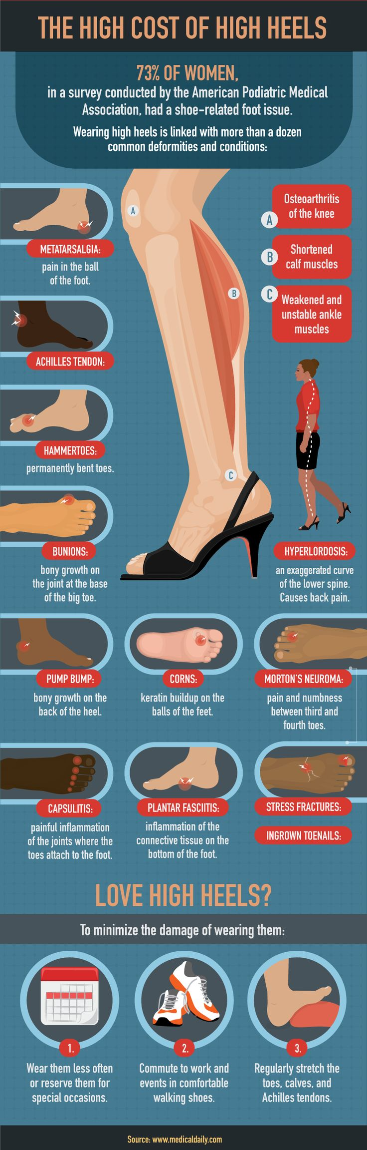 Cost of High Heels - How to Treat Your Feet