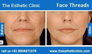 Face Thread Lift Surgery | Facial Threads Facelift Surgery in Mumbai, India.