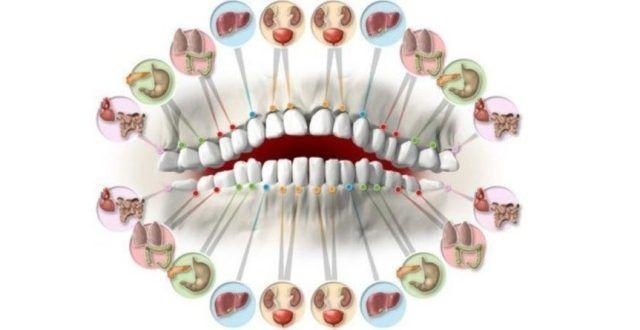 Jak se nechají slyšet odborníci – první a druhý horní a dolní řezák, jsou zodpovědní za stav ledvin a močového měchýře. To, jak vypadají vaše špičáky zase svědčí o vašem stavu jater a žluči. 4 a 5 premoláry jsou zase výsledkem kondice plic a tlustého střeva. Šesté a sedmé stoličky svědčí o kondici žlučníku, sleziny …
