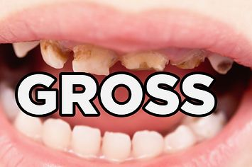 #funny #dentist #dentaljokes 11 Gross Facts About Your Teeth
