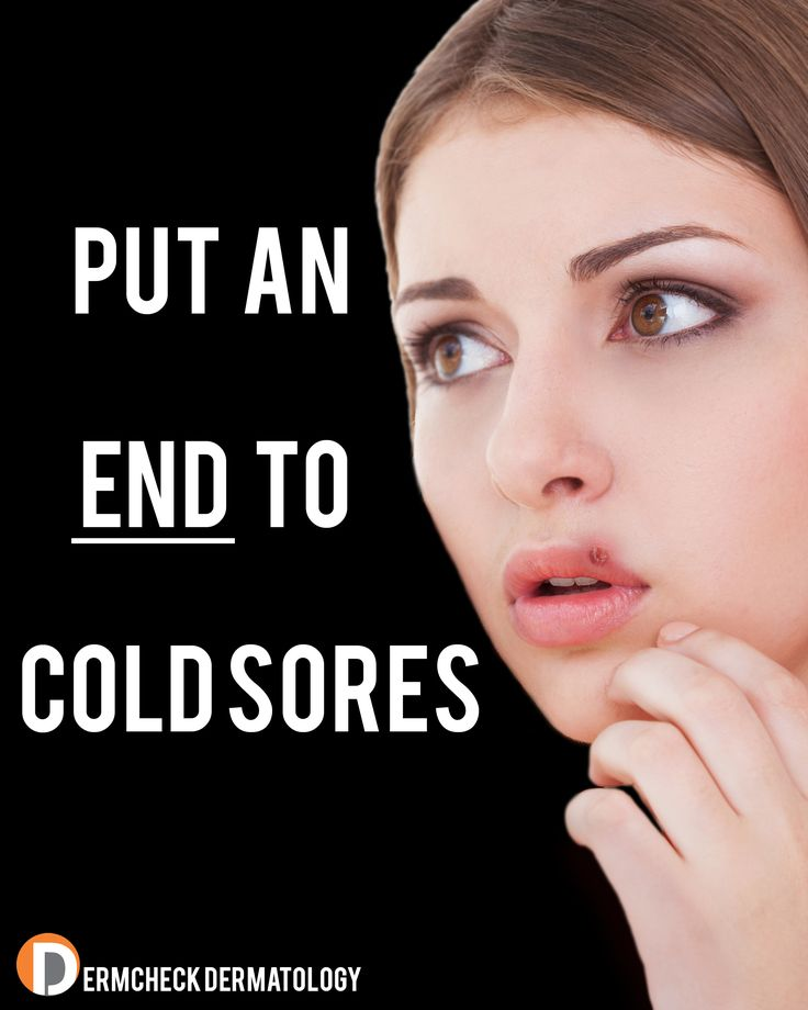 8 Best Cold Remedies Images On Pinterest Health Health