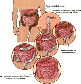 Benefits of colon irrigation