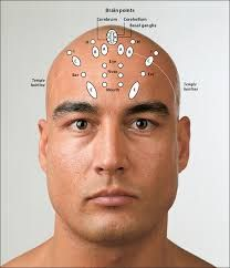 Image result for YAMAMOTO NEW SCALP ACUPUNCTURE