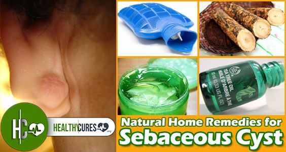 how to get rid of sebaceous glands naturally