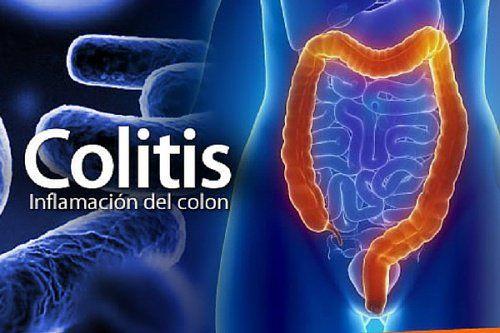 La colitis es la inflamación del intestino grueso. Te compartimos los 6 mejores remedios para calmar sus síntomas.