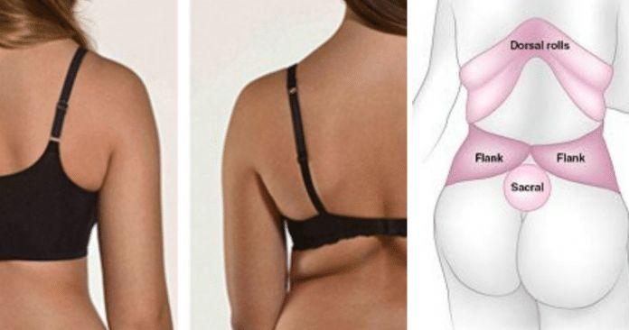 Mejores ejercicios y dieta para eliminar los rollitos de grasa localizada en la espalda