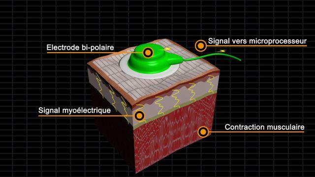 Détection du signal Lorsque le patient décide de bouger la prothèse, le signal électrique apportant la commande motrice provoque une contraction musculaire de la zone pectorale réinnervée. Cette co…