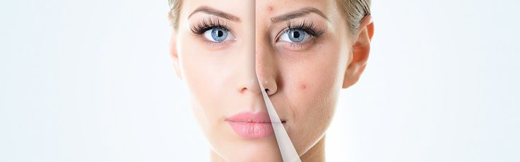 Natural Treatments for Acne – Best Way To Treat Acne Naturally
