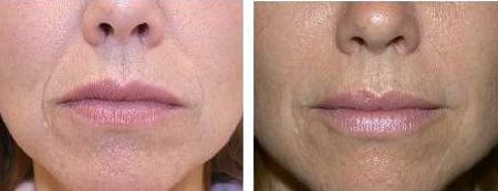 How to get rid of nasal/labial fold between nose and mouth.