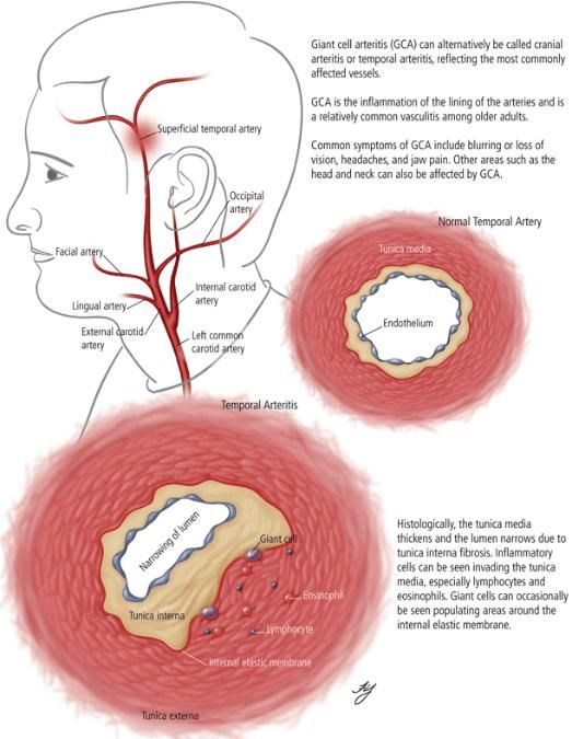 Temporal Arteritis/ Giant Cell Arteritis... High ESR... headache, jaw claudication, muscle fatigue, visual disturbances... Associated with AORTIC ANEURYSM!