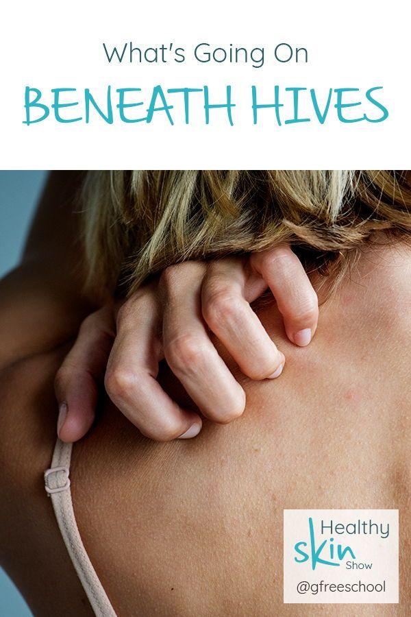 Pin On Skin Care 101