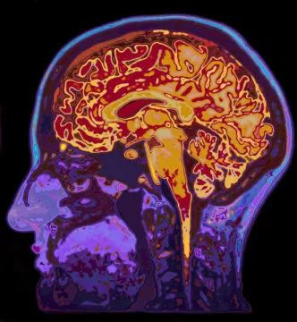 Your brain, not your white blood cells, keeps you warm, new study suggests  A...