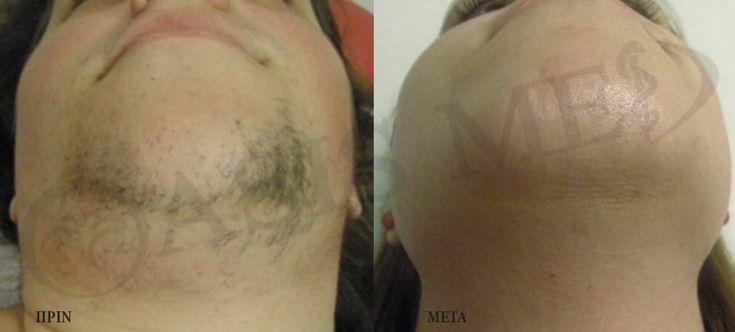 Η LASER #ΑΠΟΤΡΙΧΩΣΗ αποτελεί ιδανική λύση μόνιμης απομάκρυνσης της τριχοφυΐας, για γυναίκες και άνδρες - ανώδυνα και αποτελεσματικά! ☎ (+30)2810 301777 ➡ Ρωτήστε μας σήμερα για τις #ΠΡΟΣΦΟΡΕΣ % μας (πρόσωπο + σώμα)! Laser Hair Removal   The Only Permanent Solution! #SPRING #OFFERS #laserhairremoval #τριχοφυΐα #αλεξανδρίτης #λέιζερ #διοδικό #δερματολόγος #Αισθητική #κρήτη #ηράκλειο #ρέθυμνο #άγιοςνικόλαος #αποτρίχωση_laser #laser_alexandrite #λέιζερ_αποτρίχωσης