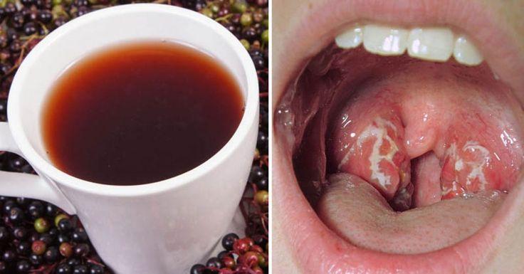 Si alguna vez ha tenido faringitis estreptocócica, sabrá lo doloroso que puede ser. Literalmente. La faringitis estreptocócica es una infección bacteriana que puede hacer que su garganta se inflame y sienta dolor. Pero si no se trata, puede provocar complicaciones adicionales, incluyendo inflamación del riñón o fiebre reumática. La causa de la faringitis estreptocócica es una bacteria llamada Streptococcus pyogenes o estreptococos del grupo A. Esta bacteria es altamente contagiosa. El…
