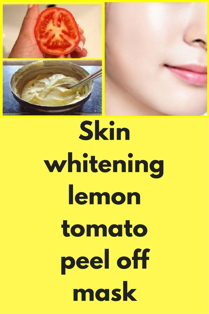 25+ unique Skin bleaching products ideas on Pinterest ...
