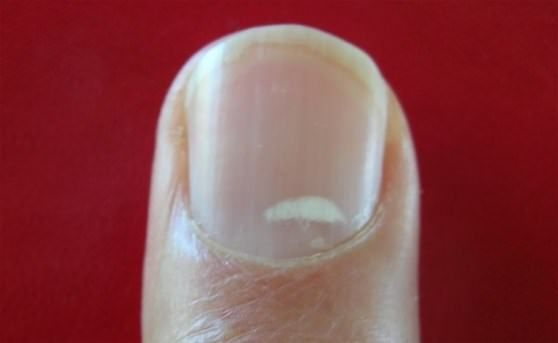 How to use home remedies to treat white spots in nails? Do you have white spots on your nails? Are you not able to get rid of them regardless of medic...