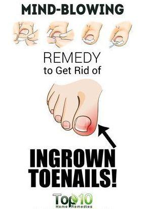 Home Remedies for Ingrown Toenails – Toned