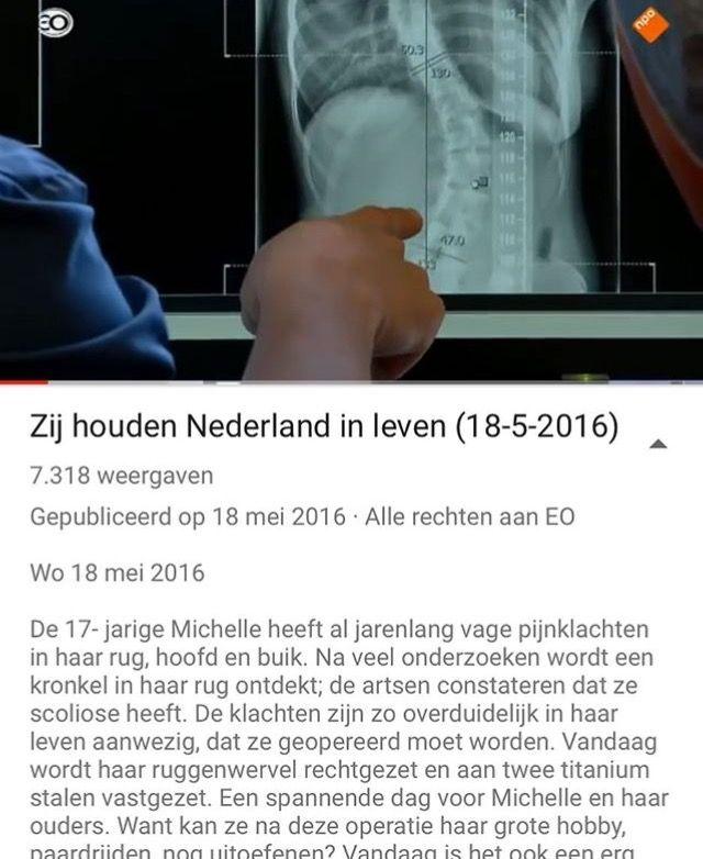 zij houden Nederland in leven- scoliose operatie