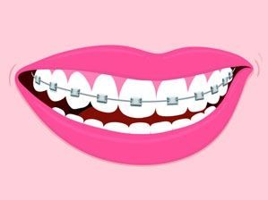 Ceramic Braces Vs. Metal Braces If you have to opt for dental braces, it is essential to know the pros and cons of the various types.