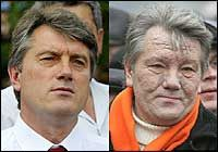 Viktor Yushchenko before and after dioxin poisoning