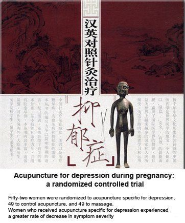 Study concludes that acupuncture is effective in reducing symptoms of depression during pregnancy. - Abba