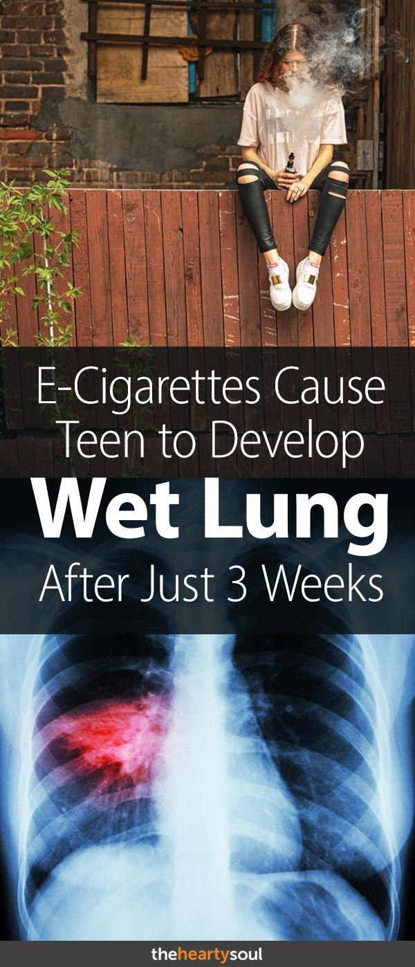 Teen Develops 'Wet Lung' After Vaping for Just 3 Weeks