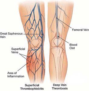 venous valves in great saphenous vein - Google Search