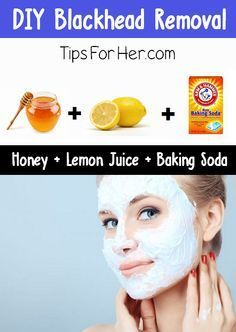 DIY Blackhead Removal - An insanely easy tip to remove black heads. All you need is 3 items you probably already have in your kitchen.