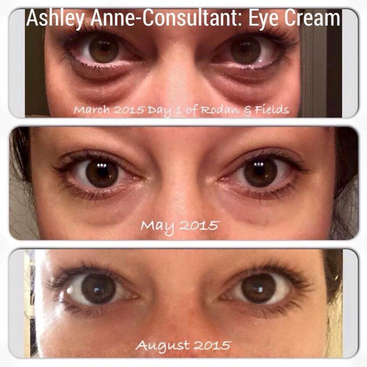 Such amazing results with Rodan and Fields eye cream!