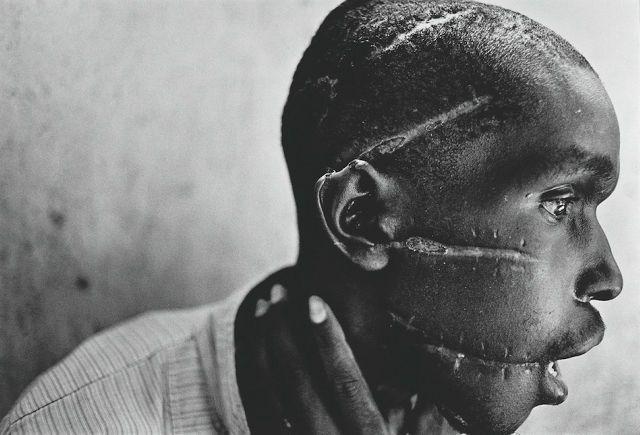 1994年 「Rwandan Genocide (ルワンダ虐殺)」 ルワンダで発生したジェノサイド「ルワンダ虐殺」の中、フツ族の民兵組織インテラハムウェに、ツチ族との内通を疑われ、顔を傷つけられたフツ族の男性。