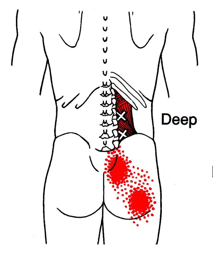 Quadratus Lumborum | The Trigger Point & Referred Pain Guide