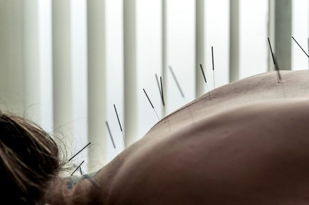 Everything you need to know before your first acupuncture appointment