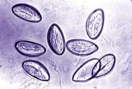 Epidemia di vermi intestinali alle scuole di Intra. I genitoi chiedono la disinfestazione