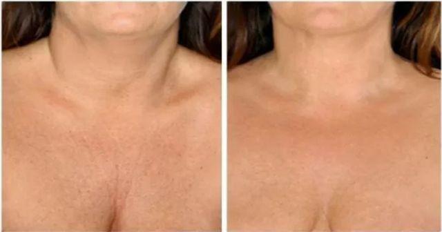 Ettől a háziszertől lesz újra feszes a nyak és a dekoltázs bőre - Szépségápolás - Stílus - www.kiskegyed.hu