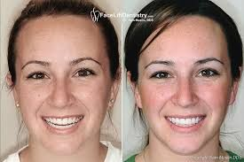 By using non-invasive Porcelain Veneers we are able to enhance the smile of…