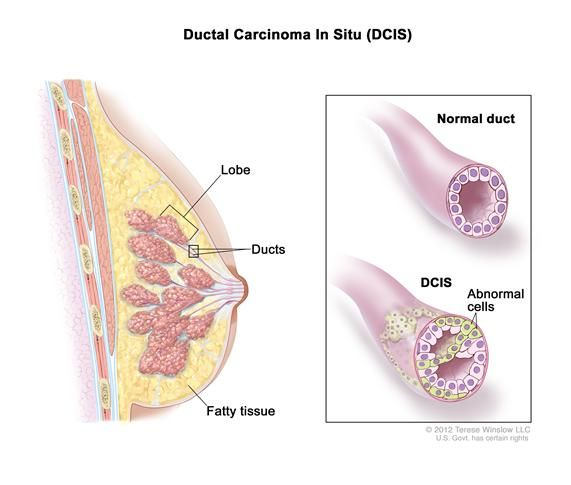 Ductal carcinoma in situ (DCIS) is a noninvasive condition that involves breast ducts and may become invasive breast cancer over time.  via @Teuta Henci