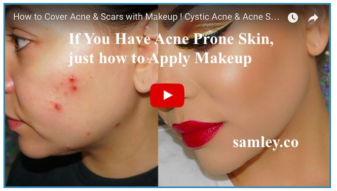 If you have acne prone skin just how to apply makeup http if you have acne prone skin just how to apply makeup httpsamleyif you have acne prone skin just how to apply makeup samleydotco ccuart Image collections