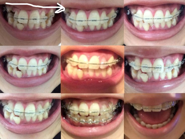 【画像あり】歯列矯正始めて2年後の経過がこちらwwwwwwww