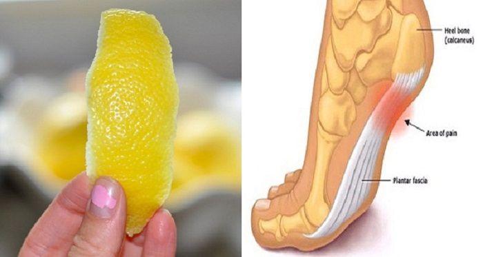 Como usar a casca de limão para se livrar da dor de esporão do calcanhar | Cura pela Natureza