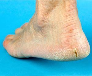 Top Five Home Remedies For Heel Fissures