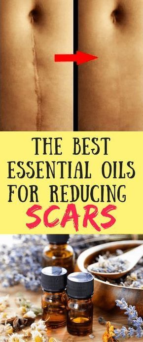 The Best Essential Oils for Reducing Scars http://beautifulclearskin.net/category/no-more-acne/