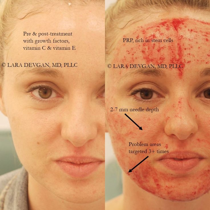 what is photo facial