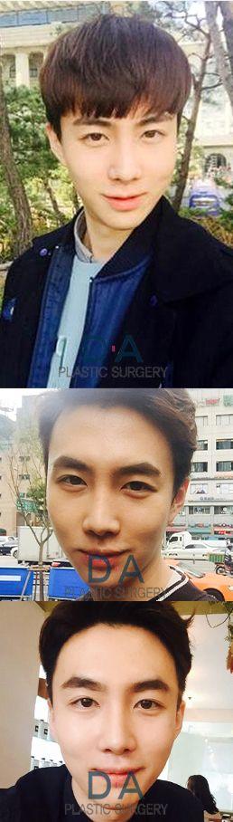 DA Rhinoplasty  For more info: en.daprs.com Make a reseration/Enquiries: info-en@daprs.com  #PlasticSurgery #DAPRS #DAPlasticSurgery #Rhinoplasty #NoseSurgery #NoseJob #Korea #PlasticSurgeryInKorea #KoreanBeauty #KoreanPlasticSurgery #GangnamPlasticSurgery #Pretty #CosmeticSurgery #Beauty #MensPlasticSurgery #PlasticSurgeryForMen