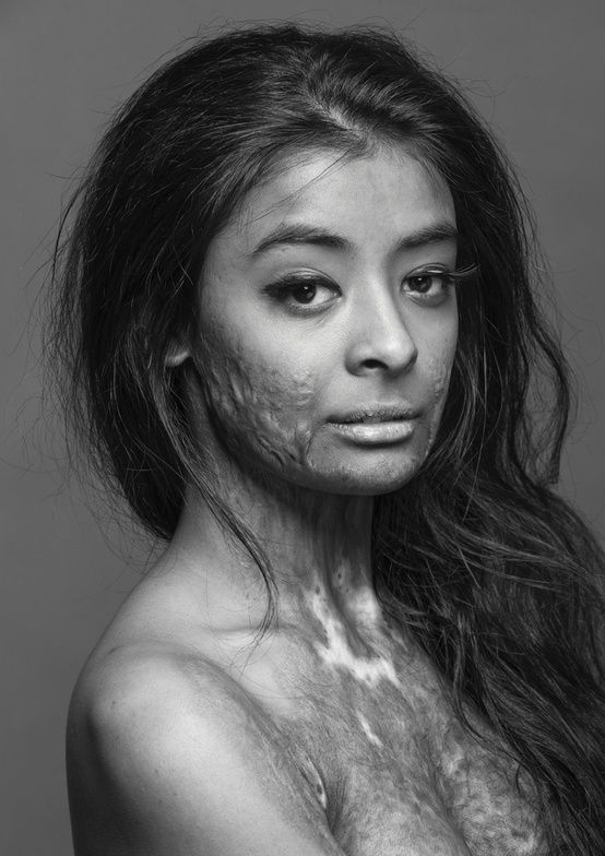 "This beautiful model, a burn survivor, did this photo shoot to, in her own words, ""prove that scars do not change a person, they make that person who they become."" As a women with scars, I really appreciate this picture so much. I've stopped hiding my scars a few years ago, but this picture just enforces my decision. Biddy Craft"